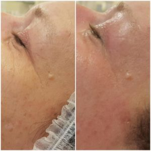 ASA Peeling treatment